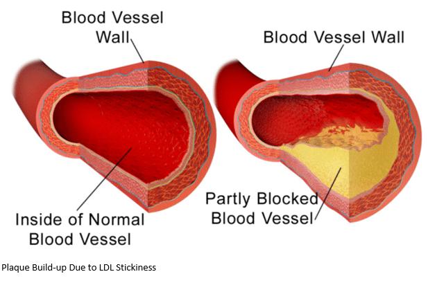 Blocked Blood Vessels