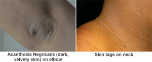 Insulin Resistance Skin Tags Acanthosis Negricans