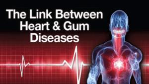Link between heart and gum diseases