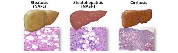 Fatty Liver and Dementia